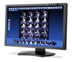 "Overclock.pl - MultiSync MD302C4 - nowy ""medyczny"" monitor od NEC"